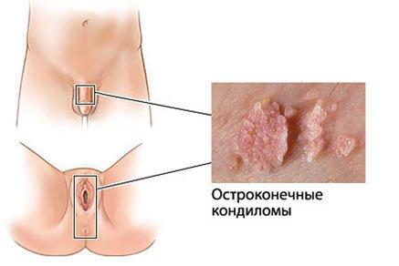 ВПЧ 16 18 типа высокого онкогенного риска что это такое